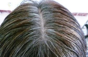 有白髮別傻傻用染髮劑!很少人知道這幾招,頭髮很自然的黑回來